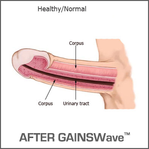 Peyronie's Disease After GAINSWave®