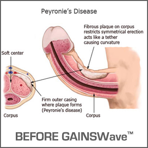 Peyronie's Disease Before GAINSWave®